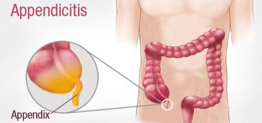 Remedies to cure Appendicitis (Inflamed Appendix)