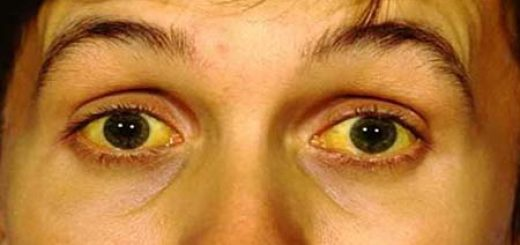 Home Remedies for Jaundice cure treatment Naturally at Home