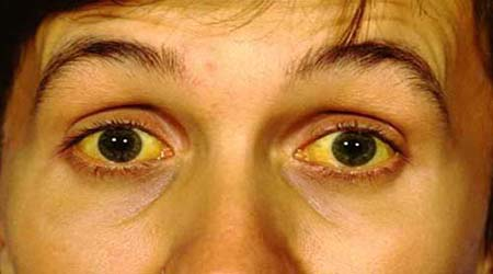 Jaundice Home Remedies Natural Cures