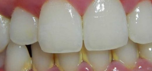 Cure Dental Infection Naturally