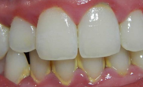 How to Cure Gingivitis (Gum Infection) Naturally with Home Remedies