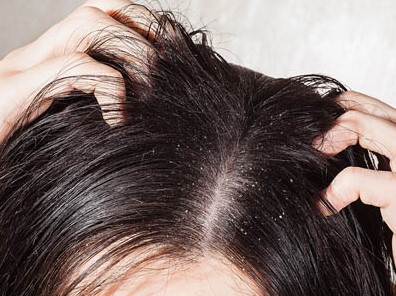How to remove Get Rid of Dandruff Permanently Home Remedies
