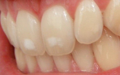 White Spots on Teeth Causes & Remedies to Get Rid of it