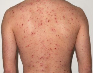 How to cure Get Rid of Chicken Pox faster